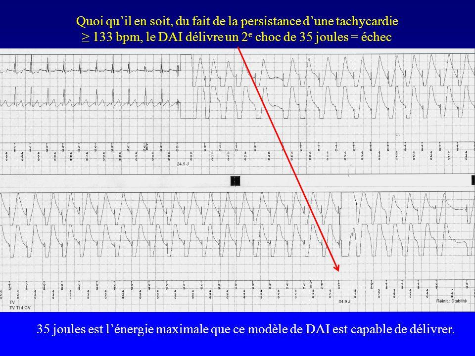 35 joules est l'énergie maximale que ce modèle de DAI est capable de délivrer. Quoi qu'il en soit, du fait de la persistance d'une tachycardie ≥ 133 b