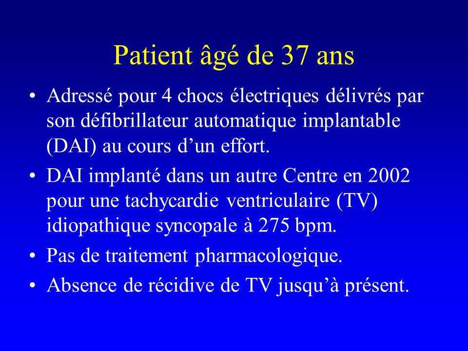 Patient âgé de 37 ans Adressé pour 4 chocs électriques délivrés par son défibrillateur automatique implantable (DAI) au cours d'un effort. DAI implant