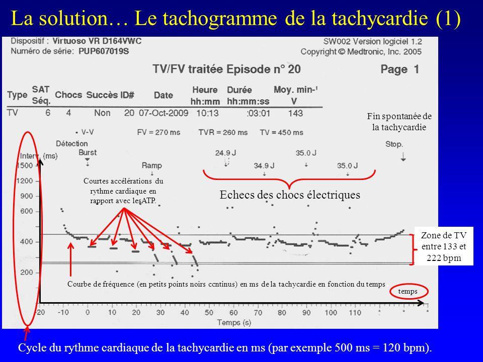 La solution… Le tachogramme de la tachycardie (1) temps Zone de TV entre 133 et 222 bpm Cycle du rythme cardiaque de la tachycardie en ms (par exemple