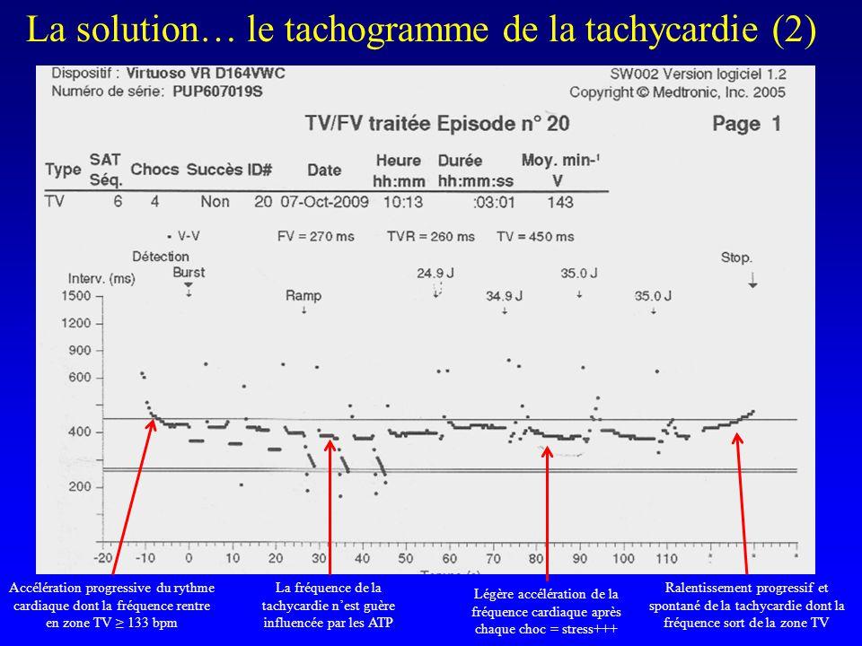 La solution… le tachogramme de la tachycardie (2) Accélération progressive du rythme cardiaque dont la fréquence rentre en zone TV ≥ 133 bpm La fréque