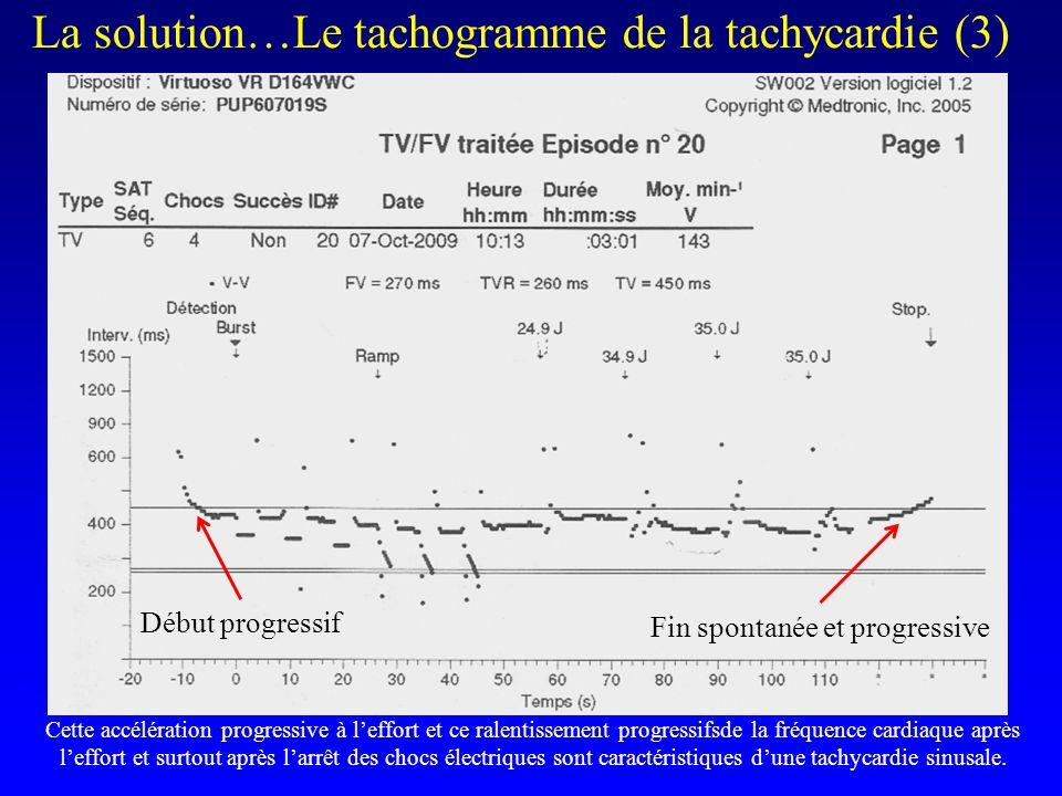 l La solution…Le tachogramme de la tachycardie (3) Cette accélération progressive à l'effort et ce ralentissement progressifsde la fréquence cardiaque