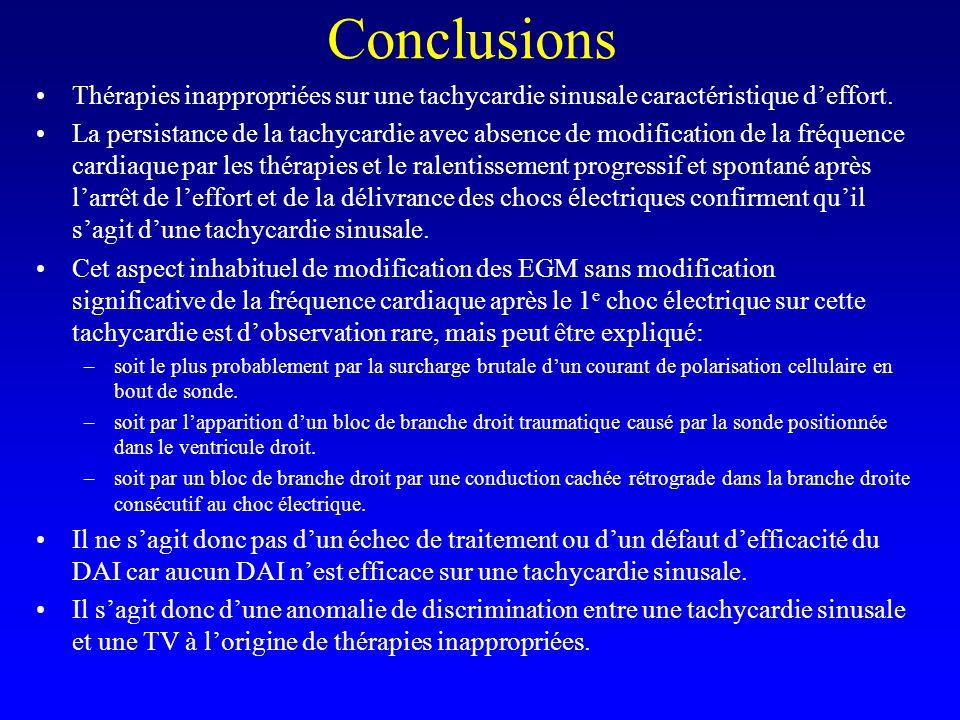 Conclusions Thérapies inappropriées sur une tachycardie sinusale caractéristique d'effort. La persistance de la tachycardie avec absence de modificati