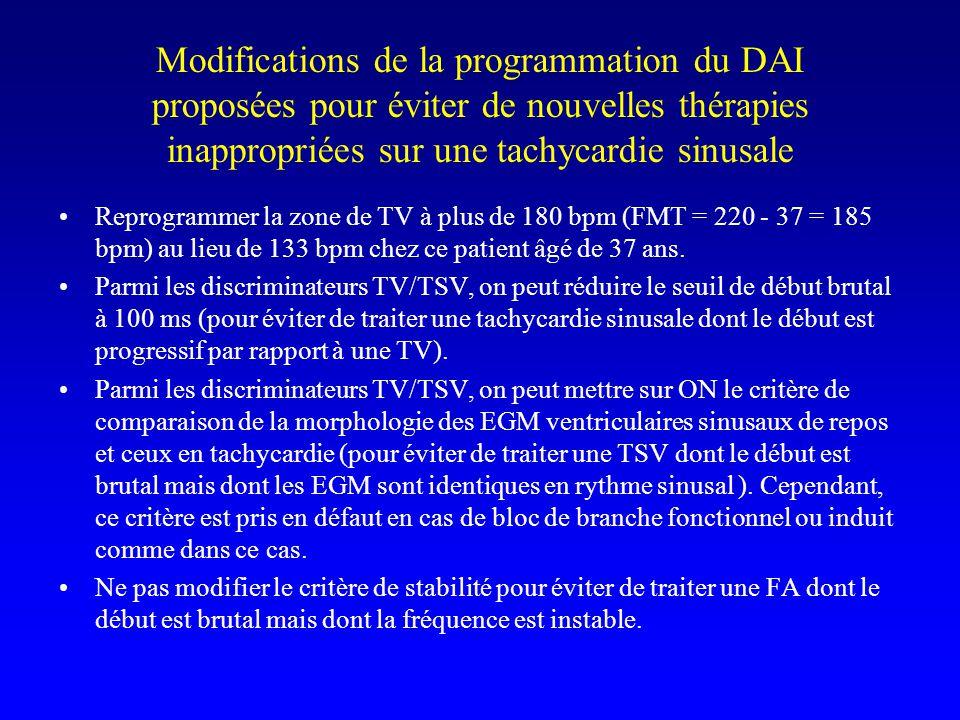 Modifications de la programmation du DAI proposées pour éviter de nouvelles thérapies inappropriées sur une tachycardie sinusale Reprogrammer la zone