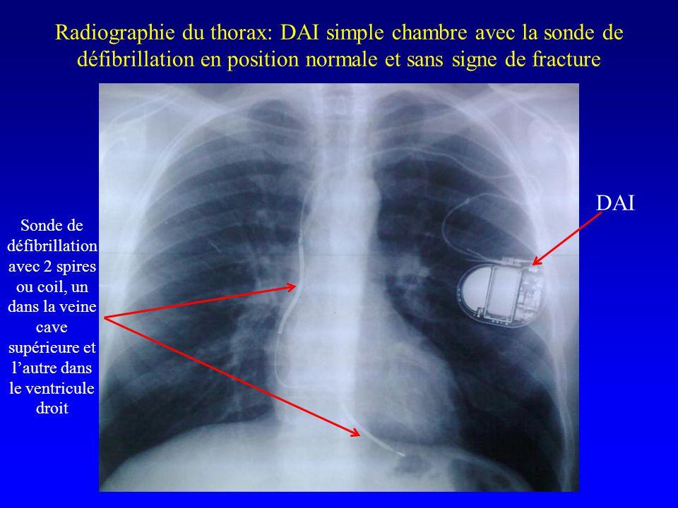 Radiographie du thorax: DAI simple chambre avec la sonde de défibrillation en position normale et sans signe de fracture DAI Sonde de défibrillation a