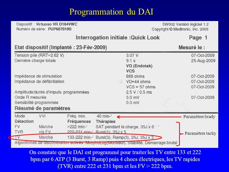 Programmation du DAI On constate que le DAI est programmé pour traiter les TV entre 133 et 222 bpm par 6 ATP (3 Burst, 3 Ramp) puis 4 chocs électrique