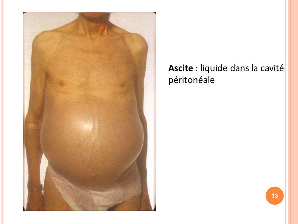 Ascite : liquide dans la cavité péritonéale 13