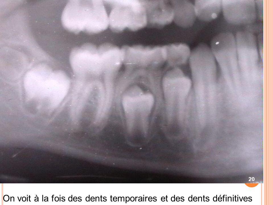 On voit à la fois des dents temporaires et des dents définitives 20