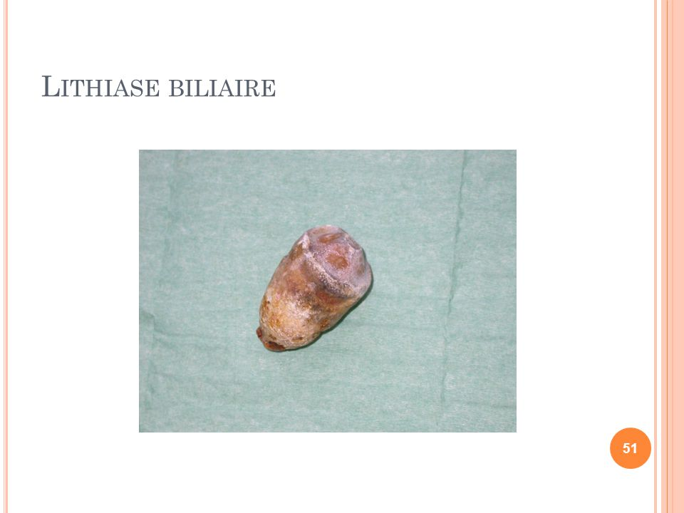L ITHIASE BILIAIRE 51
