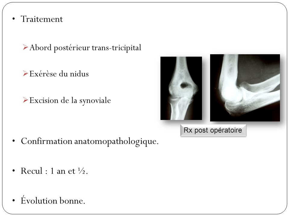 Traitement  Abord postérieur trans-tricipital  Exérèse du nidus  Excision de la synoviale Confirmation anatomopathologique. Recul : 1 an et ½. Évol