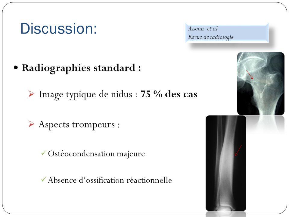 Discussion: Radiographies standard :  Image typique de nidus : 75 % des cas  Aspects trompeurs : Ostéocondensation majeure Absence d'ossification ré