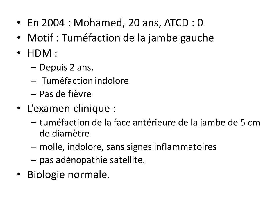 En 2004 : Mohamed, 20 ans, ATCD : 0 Motif : Tuméfaction de la jambe gauche HDM : – Depuis 2 ans. – Tuméfaction indolore – Pas de fièvre L'examen clini