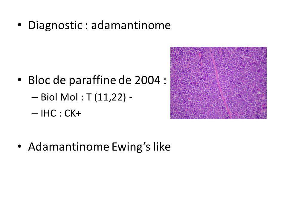 Diagnostic : adamantinome Bloc de paraffine de 2004 : – Biol Mol : T (11,22) - – IHC : CK+ Adamantinome Ewing's like