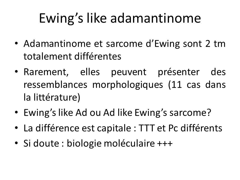 Ewing's like adamantinome Adamantinome et sarcome d'Ewing sont 2 tm totalement différentes Rarement, elles peuvent présenter des ressemblances morphol