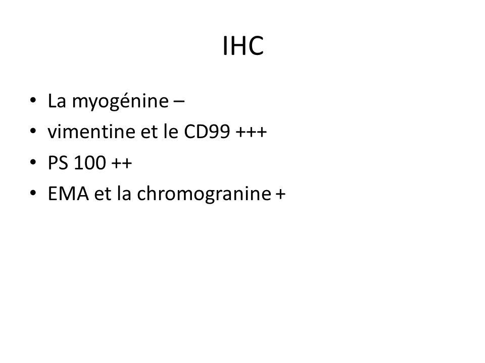 IHC La myogénine – vimentine et le CD99 +++ PS 100 ++ EMA et la chromogranine +