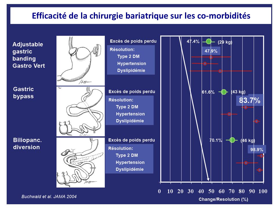 Chirurgie de l'obésité chez DT2 Toutes procédures Anneau ajustable Gastroplastie verticale By-pass Perte de l'excès de poids (%)55,9%46,2%55,5%59,7% Rémission DT2 (%)78,1%56,7%79,7%80,3% Rémission DT2, < 2 ans (%)80,3%55,0%81,4%81,6% Rémission DT2, > 2 ans (%)74,6%58,3%77,5%70,9% Buchwald H et al.