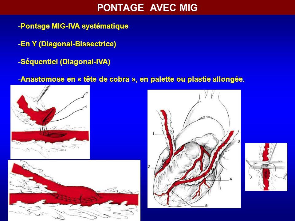 -Pontage MIG-IVA systématique -En Y (Diagonal-Bissectrice) -Séquentiel (Diagonal-IVA) -Anastomose en « tête de cobra », en palette ou plastie allongée.