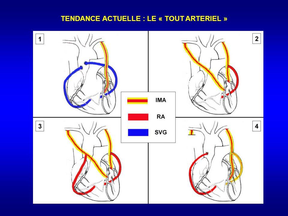 TENDANCE ACTUELLE : LE « TOUT ARTERIEL »
