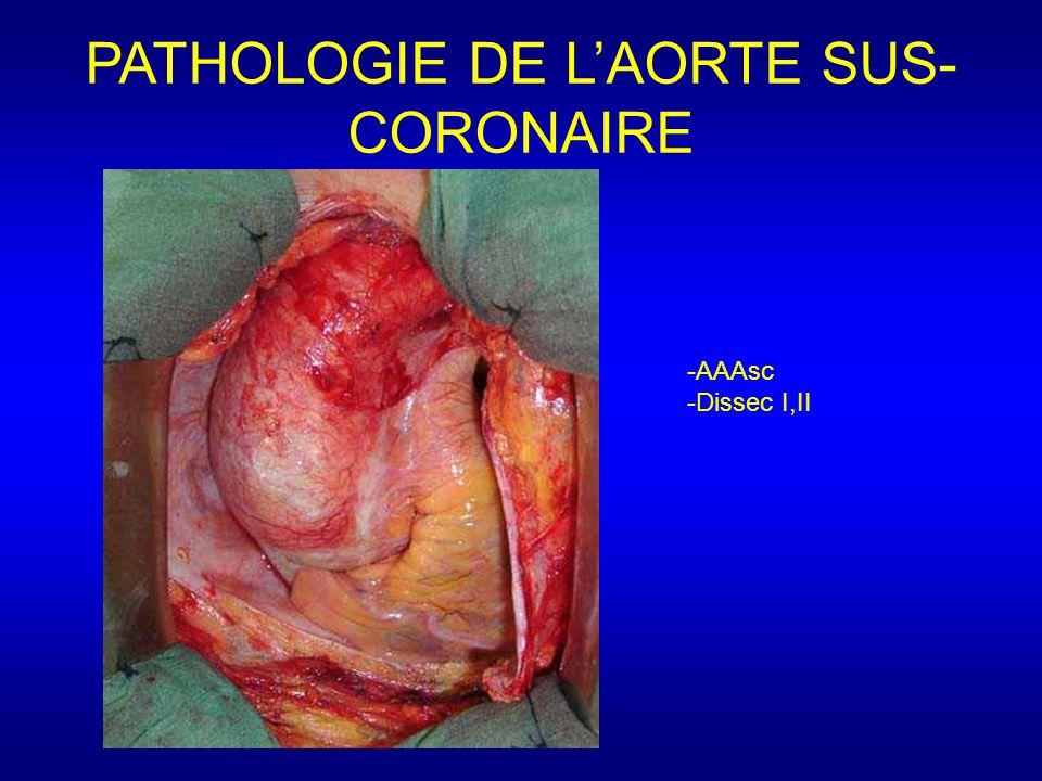 PATHOLOGIE DE L'AORTE SUS- CORONAIRE -AAAsc -Dissec I,II