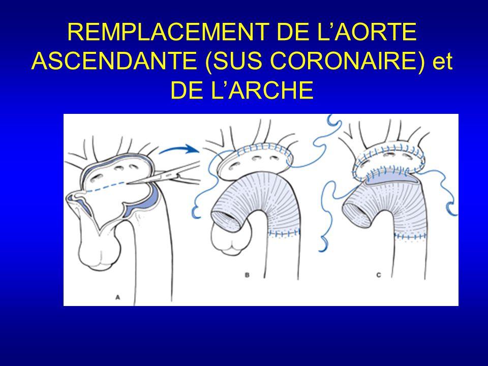 REMPLACEMENT DE L'AORTE ASCENDANTE (SUS CORONAIRE) et DE L'ARCHE