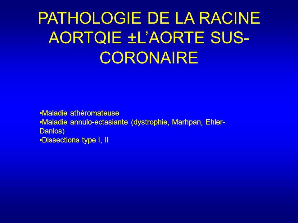 PATHOLOGIE DE LA RACINE AORTQIE ±L'AORTE SUS- CORONAIRE Maladie athéromateuse Maladie annulo-ectasiante (dystrophie, Marhpan, Ehler- Danlos) Dissections type I, II