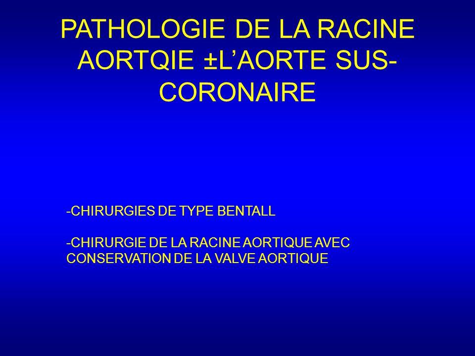 PATHOLOGIE DE LA RACINE AORTQIE ±L'AORTE SUS- CORONAIRE -CHIRURGIES DE TYPE BENTALL -CHIRURGIE DE LA RACINE AORTIQUE AVEC CONSERVATION DE LA VALVE AORTIQUE