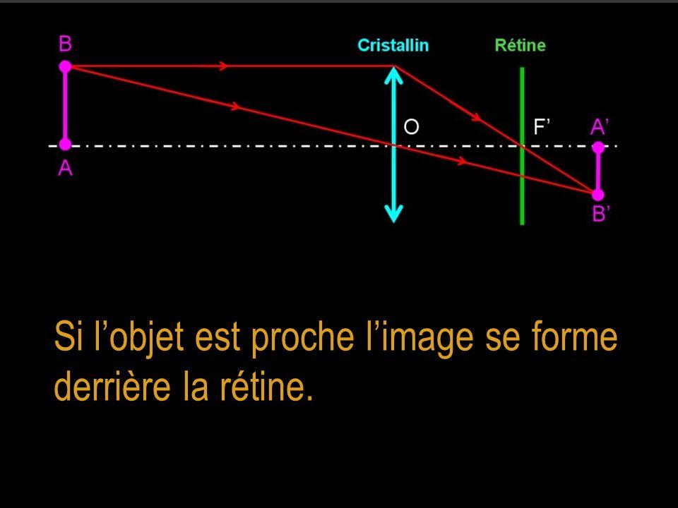 Si l'objet est proche l'image se forme derrière la rétine.
