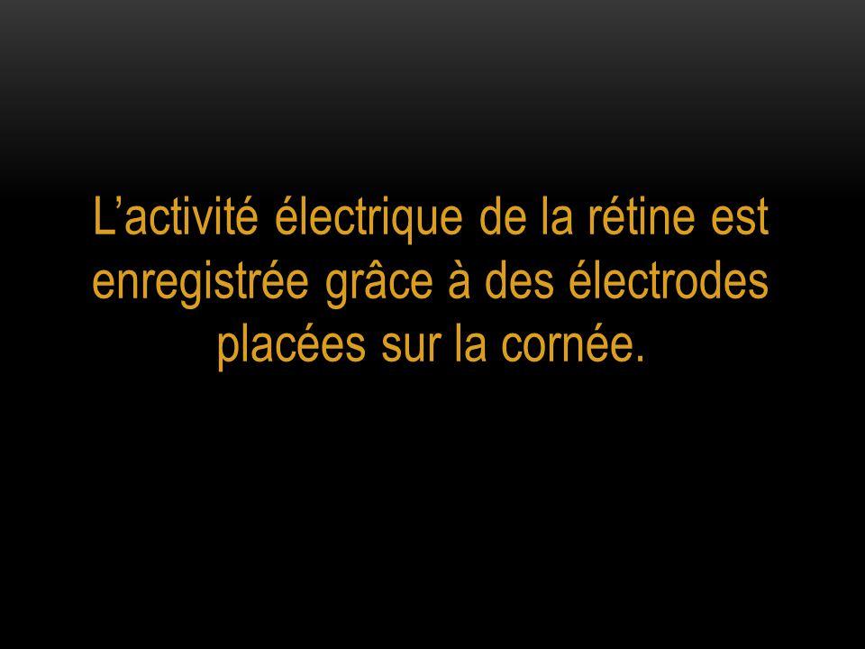 L'activité électrique de la rétine est enregistrée grâce à des électrodes placées sur la cornée.