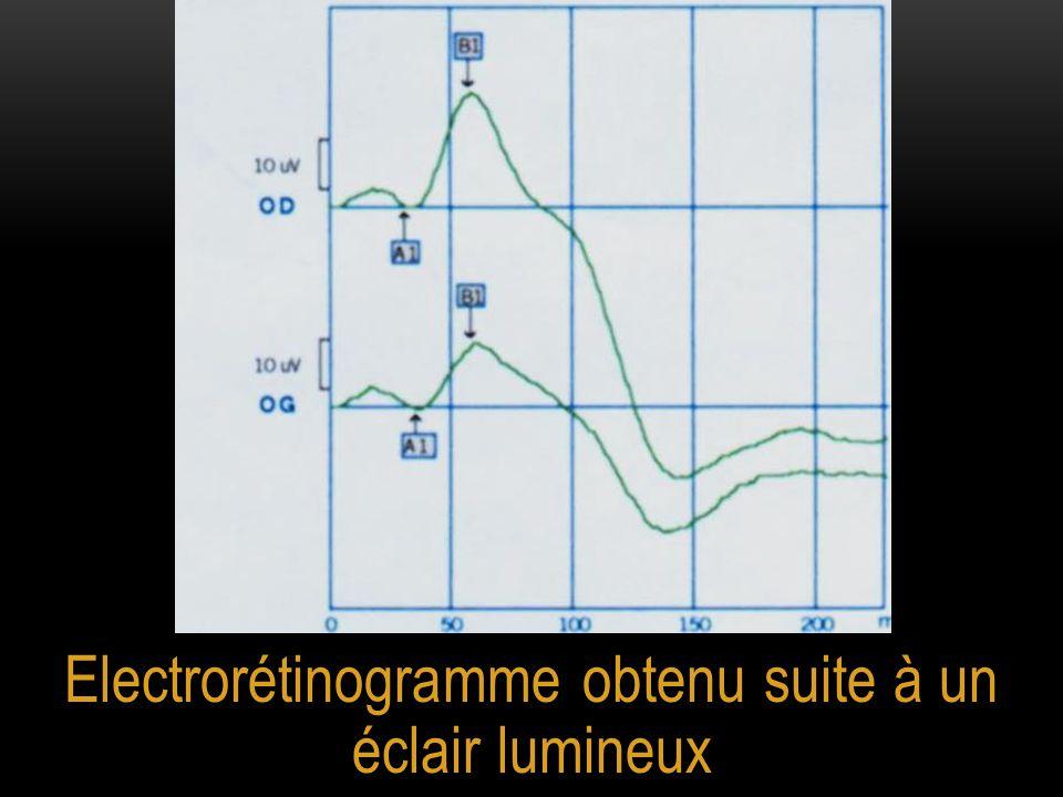 Electrorétinogramme obtenu suite à un éclair lumineux