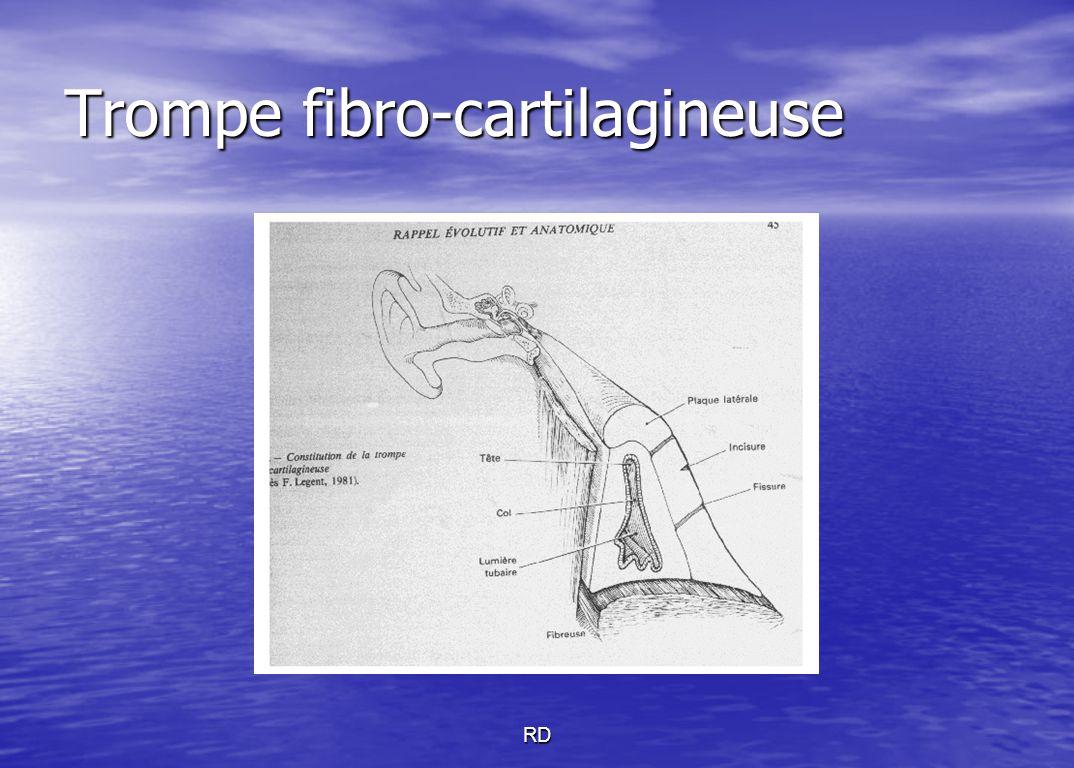 RD Trompe fibro-cartilagineuse