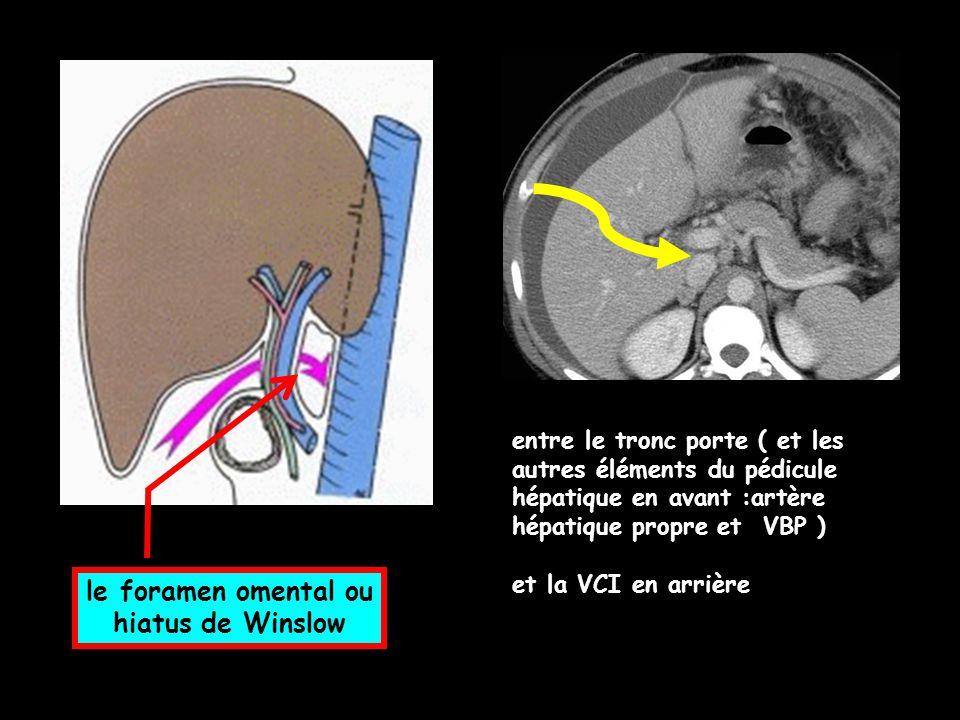 le foramen omental ou hiatus de Winslow entre le tronc porte ( et les autres éléments du pédicule hépatique en avant :artère hépatique propre et VBP )