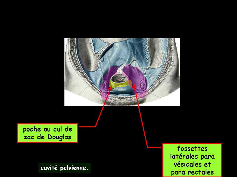 poche ou cul de sac de Douglas cavité pelvienne. fossettes latérales para vésicales et para rectales