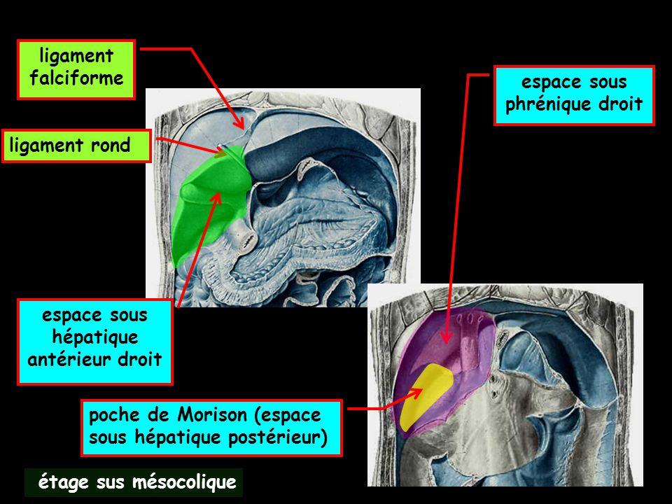 étage sus mésocolique ligament falciforme ligament rond espace sous hépatique antérieur droit espace sous phrénique droit poche de Morison (espace sou