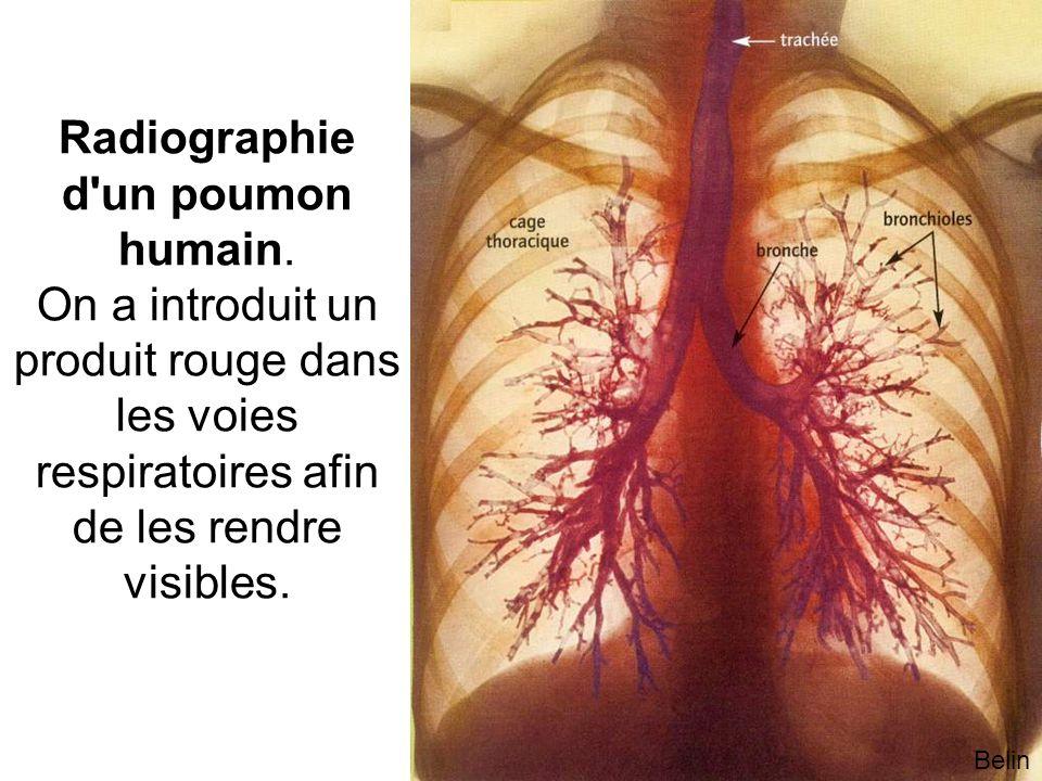 Belin Radiographie d un poumon humain.