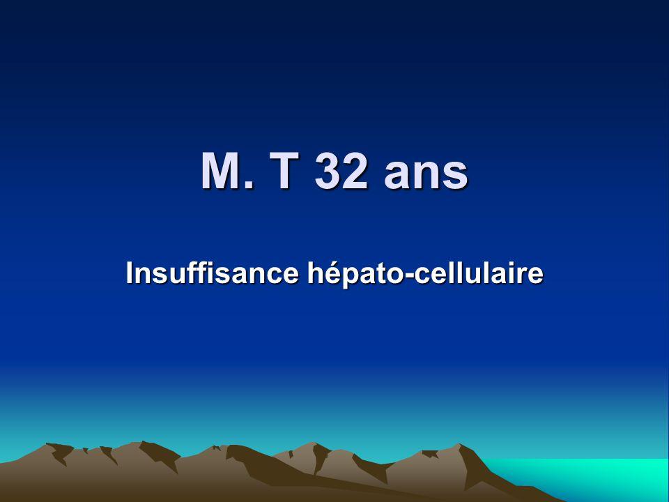 M. T 32 ans Insuffisance hépato-cellulaire