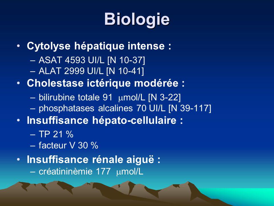 Biologie Cytolyse hépatique intense : –ASAT 4593 UI/L [N 10-37] –ALAT 2999 UI/L [N 10-41] Cholestase ictérique modérée : –bilirubine totale 91  mol/L