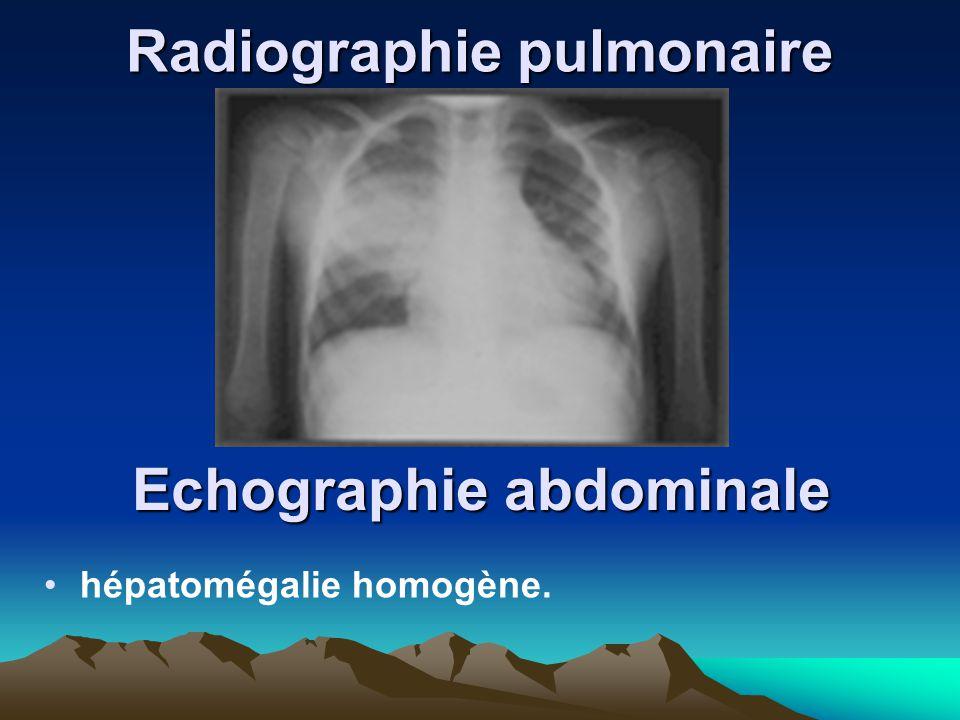 Radiographie pulmonaire Echographie abdominale hépatomégalie homogène.