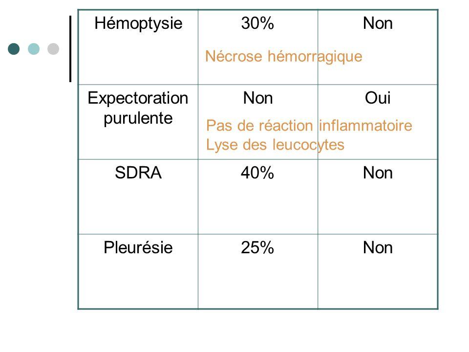 Hémoptysie30%Non Expectoration purulente NonOui SDRA40%Non Pleurésie25%Non Nécrose hémorragique Pas de réaction inflammatoire Lyse des leucocytes