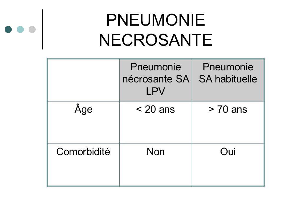 PNEUMONIE NECROSANTE Pneumonie nécrosante SA LPV Pneumonie SA habituelle Âge< 20 ans> 70 ans ComorbiditéNonOui