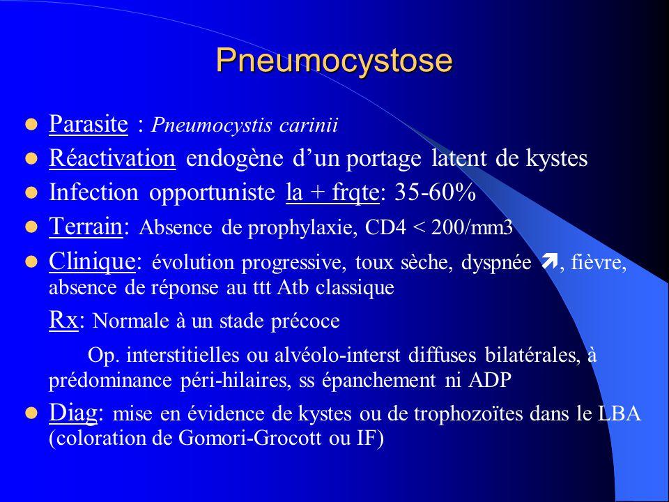 Pneumocystose Parasite : Pneumocystis carinii Réactivation endogène d'un portage latent de kystes Infection opportuniste la + frqte: 35-60% Terrain: A