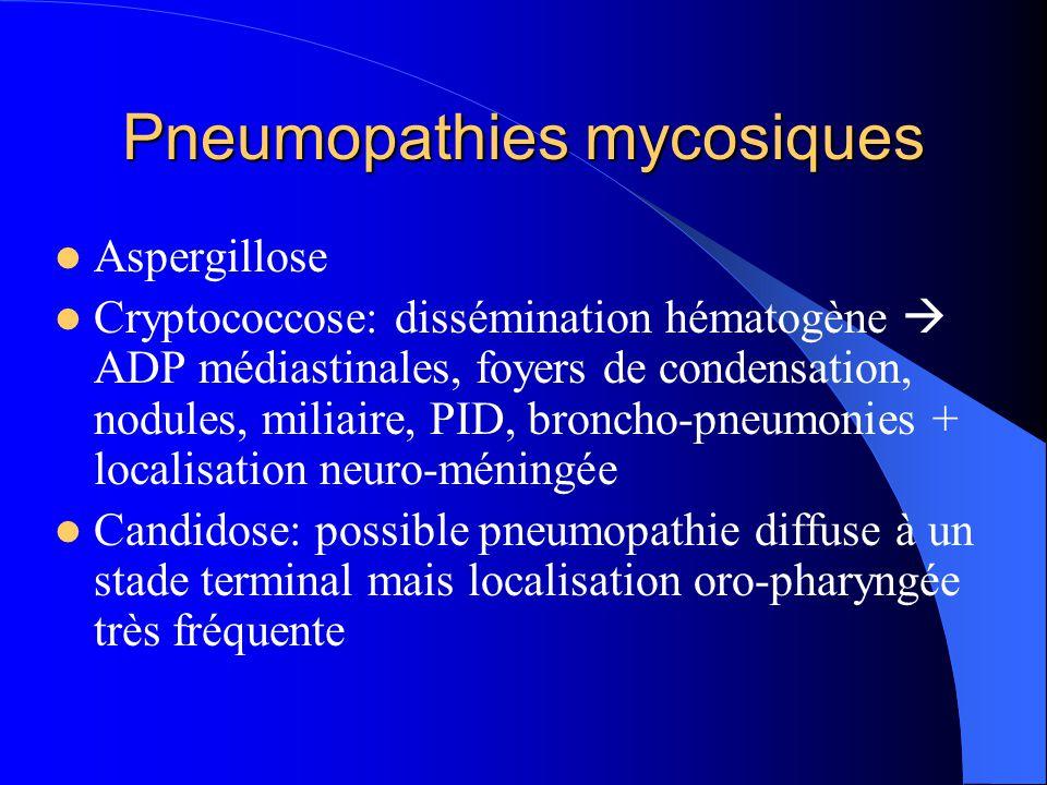 Pneumopathies mycosiques Aspergillose Cryptococcose: dissémination hématogène  ADP médiastinales, foyers de condensation, nodules, miliaire, PID, bro