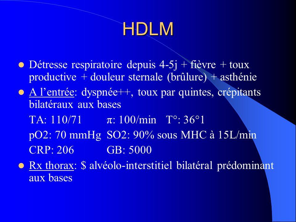 Prise en charge Atb : Oflocet* + Claforan* + Bactrim* + corticoïdes + VNI  Amélioration de l'état général Bactério: Ag urinaires et séro légionelle – séro mycoplasme et aspergillus – ECBC – pour les mycobactéries J6: Réascension thermique (38°8) Fibroscopie bronchique + LBA  Pneumocystis carinii à l'examen direct Poursuite Bactrim* + corticothérapie Arrêt VNI à J11 et transfert en Maladies infectieuses