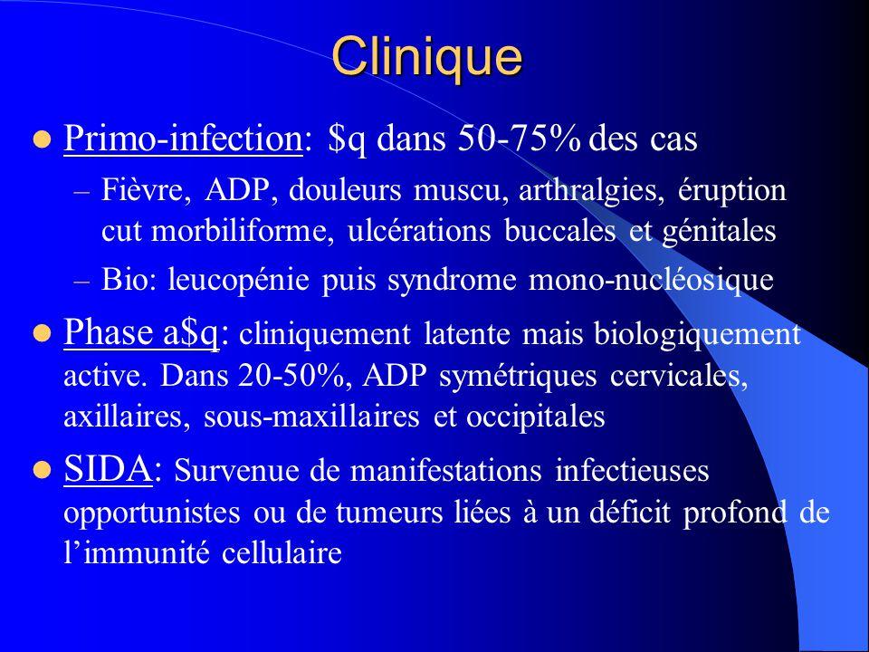 Classification de la maladie à VIH (1993) Stade AStade BStade C Infection VIH a$q LymphADP généralisée persistante Primo-inf $q Candidose oroφ Candidose vaginale Dysplasie col utérin Fièvre ou diarrhée >1M Leucoplasie chevelue de la langue PTI Neuropathie périphériq Candidose bronchique K invasif du col utérin Infection par CMV Encéphalopathie due au VIH Herpès, ulcération > 1M Kaposie Pneumocystose Tb, mycobactéries LEMP Toxoplasmose cérébrale $ cachectique SIDA = Std C (qqst le nb de CD4) et Std A ou B si CD4 < 200