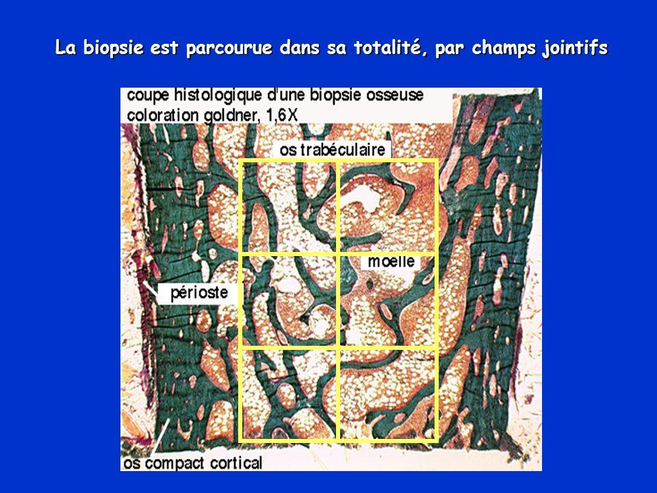 La biopsie est parcourue dans sa totalité, par champs jointifs