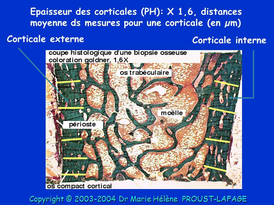 Epaisseur des corticales (PH): X 1,6, distances moyenne ds mesures pour une corticale (en µm) Corticale interne Corticale externe Copyright © 2003-200