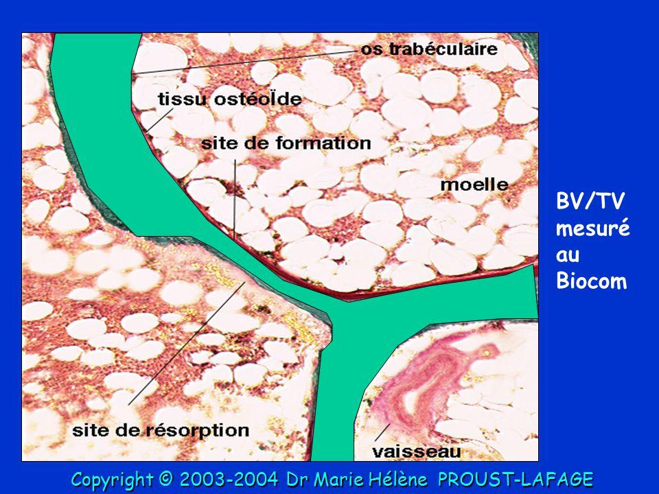 BV/TV mesuré au Biocom Copyright © 2003-2004Dr Marie Hélène PROUST-LAFAGE Copyright © 2003-2004 Dr Marie Hélène PROUST-LAFAGE