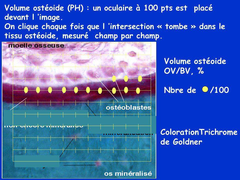 ColorationTrichrome de Goldner Volume ostéoide (PH) : un oculaire à 100 pts est placé devant l 'image. On clique chaque fois que l 'intersection « tom