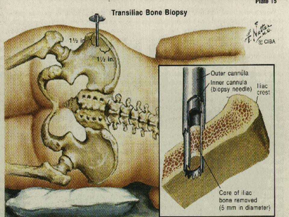 Oc S BS Paramètres ostéoclastiques, longueurs (click appuyé), se mesure champ par champ, (X 10) -Surfaces ostéoclastiques: Oc S/BS, % - / BS -Nombre d 'ostéoclastes Nbre de / par 3 dénominateurs possibles: B Ar: Bone Area, mm 2 T Ar: Tissue Area, mm2 B Pm; Bone perimeter, mm