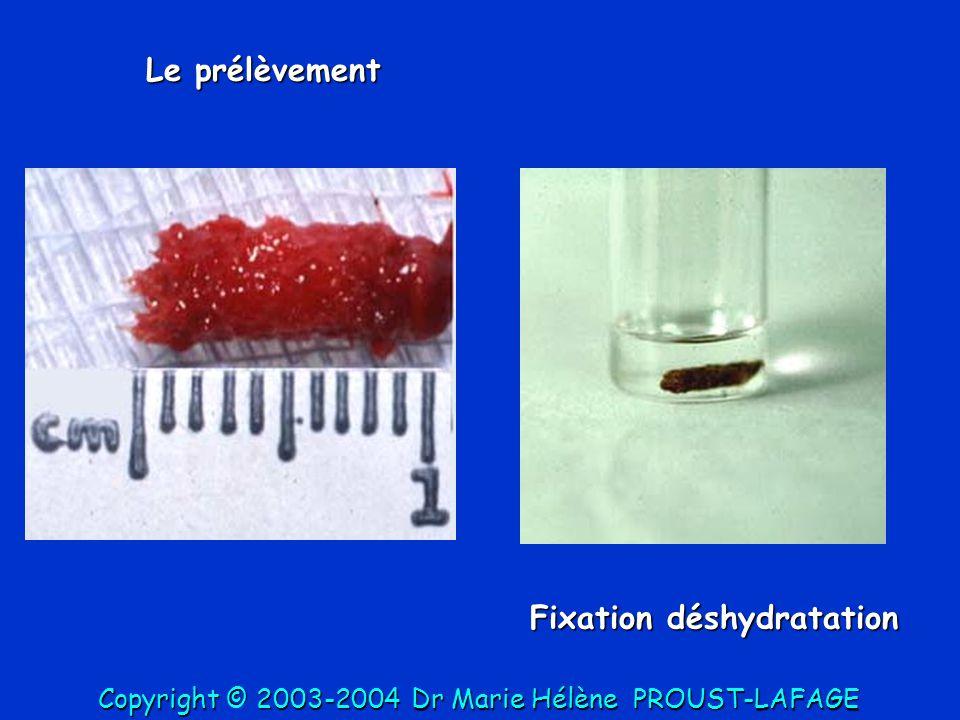Le prélèvement Fixation déshydratation Copyright © 2003-2004DrMarie Hélène PROUST-LAFAGE Copyright © 2003-2004 Dr Marie Hélène PROUST-LAFAGE