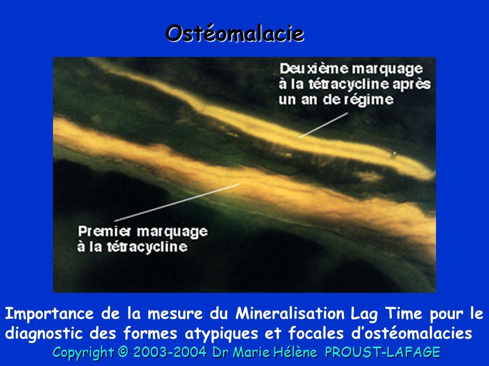 Importance de la mesure du Mineralisation Lag Time pour le diagnostic des formes atypiques et focales d'ostéomalacies Ostéomalacie Copyright © 2003-20