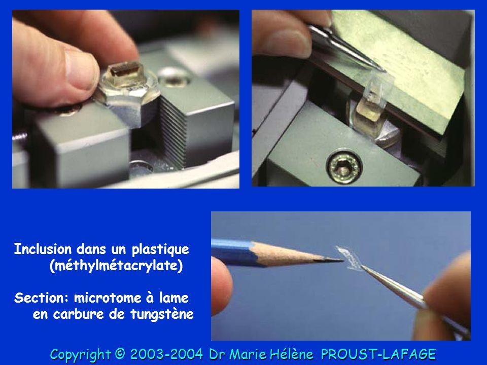 Inclusion dans un plastique (méthylmétacrylate) Section: microtome à lame en carbure de tungstène Copyright © 2003-2004DrMarie Hélène PROUST-LAFAGE Co